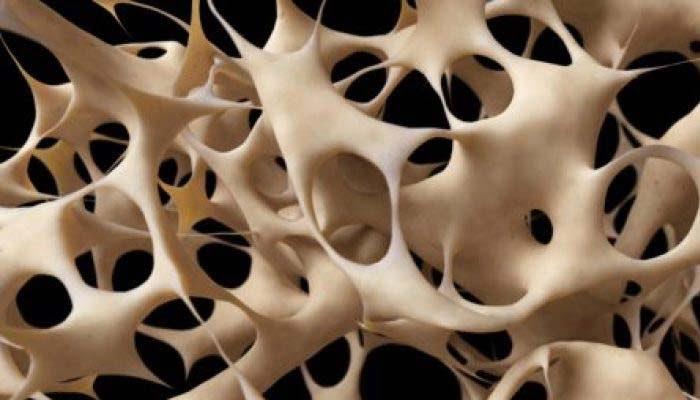 Osteoporosi Indotta Da Glucorticoidi: Denosumab Più Efficace Di Risendronato